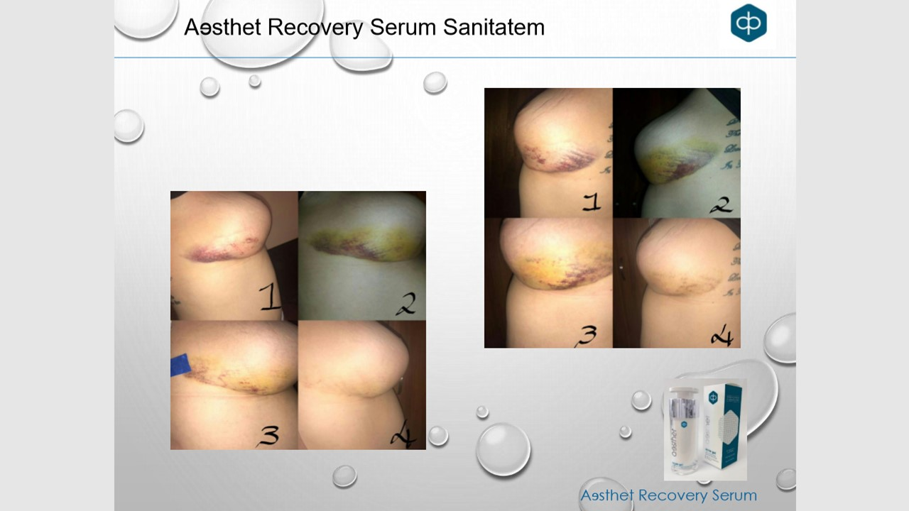 sanitatem serum 3