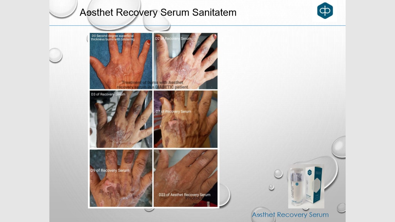 sanitatem serum 5